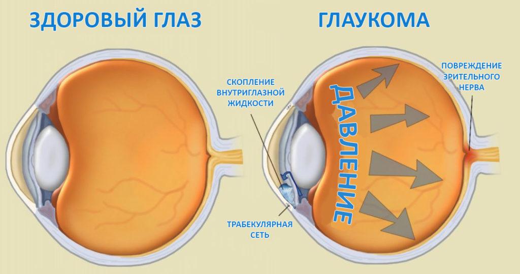 Глазное давление: симптомы, диагностика, лечение и ...